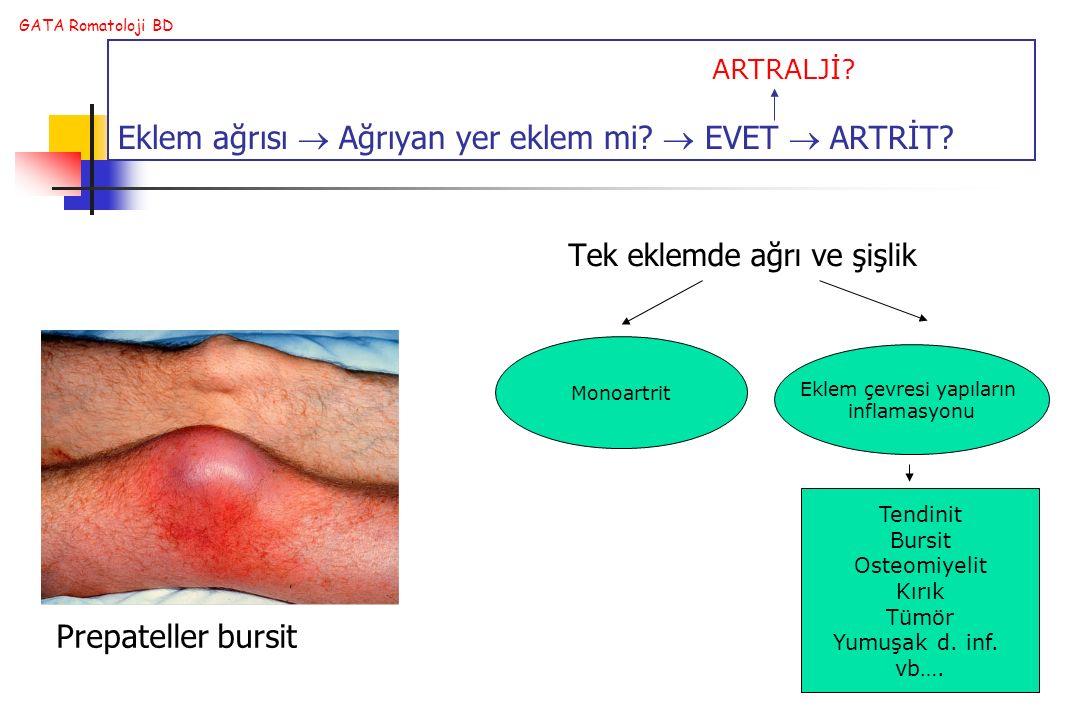 Eklem ağrısı  Ağrıyan yer eklem mi  EVET  ARTRİT