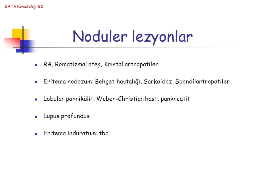 Noduler lezyonlar RA, Romatizmal ateş, Kristal artropatiler