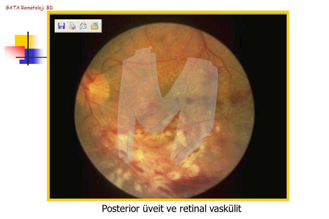 Posterior üveit ve retinal vaskülit