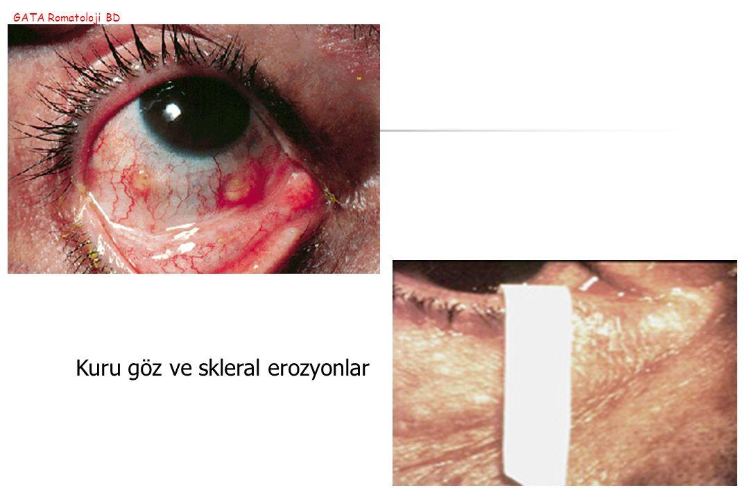 Kuru göz ve skleral erozyonlar