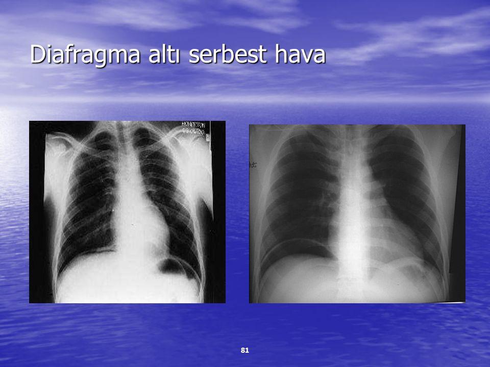 Diafragma altı serbest hava
