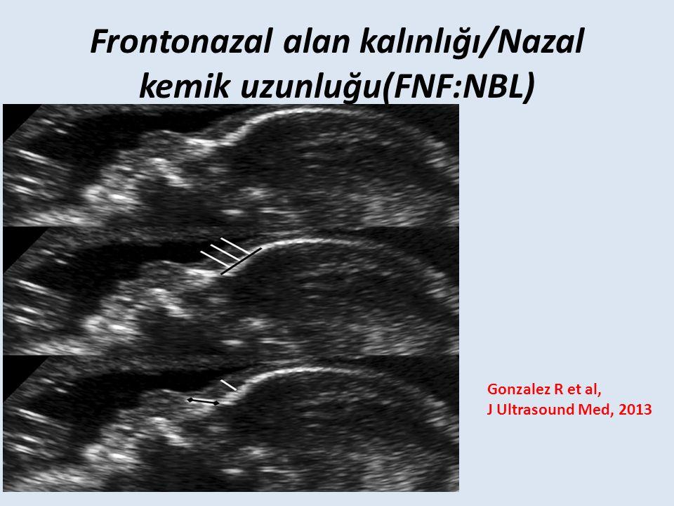 Frontonazal alan kalınlığı/Nazal kemik uzunluğu(FNF:NBL)