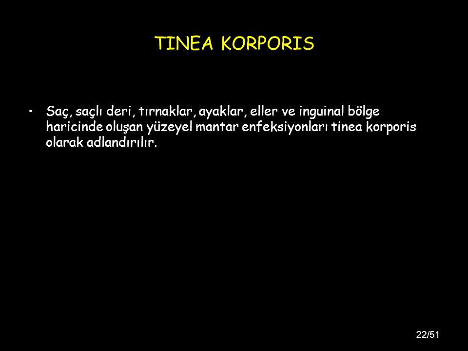 TINEA KORPORIS