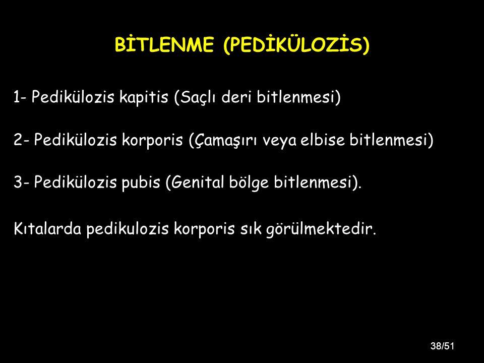 BİTLENME (PEDİKÜLOZİS)