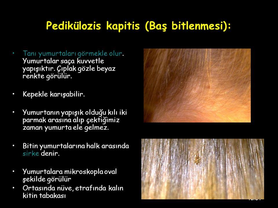 Pedikülozis kapitis (Baş bitlenmesi):
