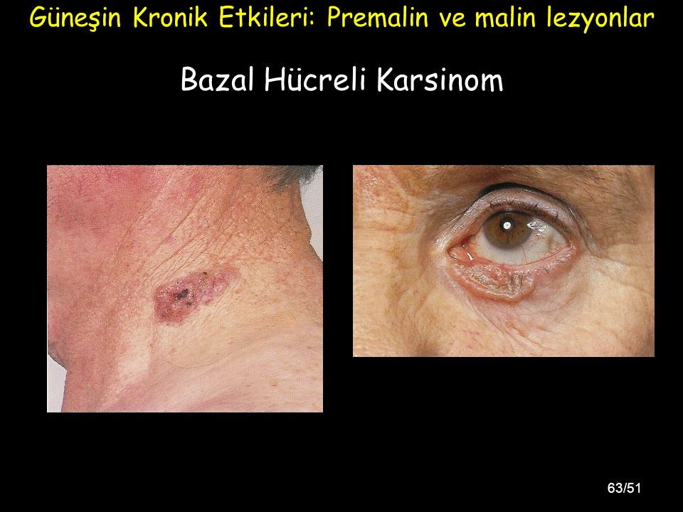 Bazal Hücreli Karsinom