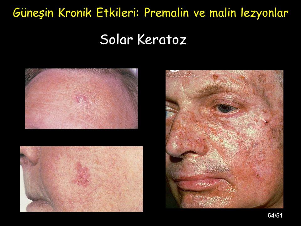 Güneşin Kronik Etkileri: Premalin ve malin lezyonlar