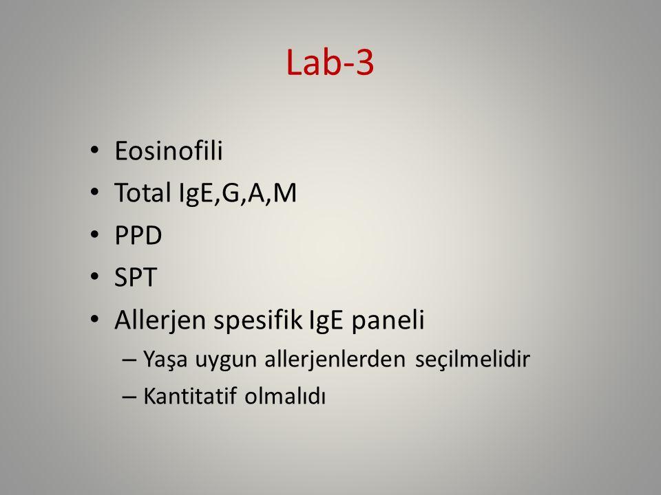 Lab-3 Eosinofili Total IgE,G,A,M PPD SPT Allerjen spesifik IgE paneli