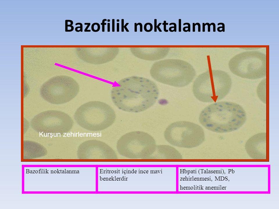 Bazofilik noktalanma Kurşun zehirlenmesi Bazofilik noktalanma