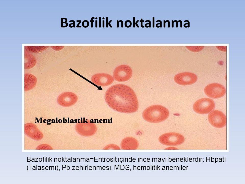 Bazofilik noktalanma Bazofilik noktalanma=Eritrosit içinde ince mavi beneklerdir: Hbpati (Talasemi), Pb zehirlenmesi, MDS, hemolitik anemiler.