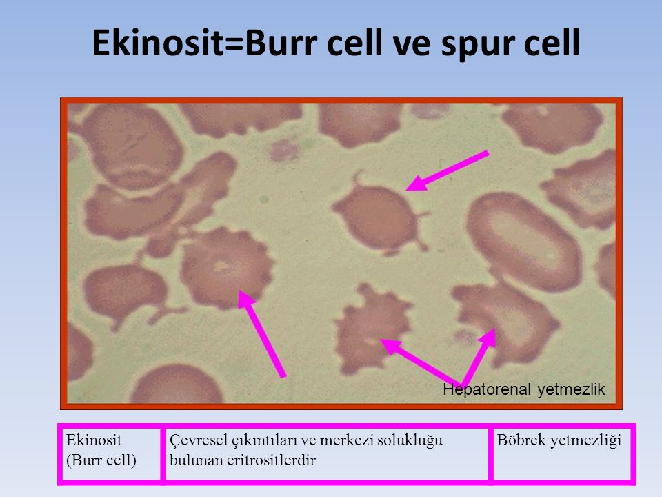 Ekinosit=Burr cell ve spur cell