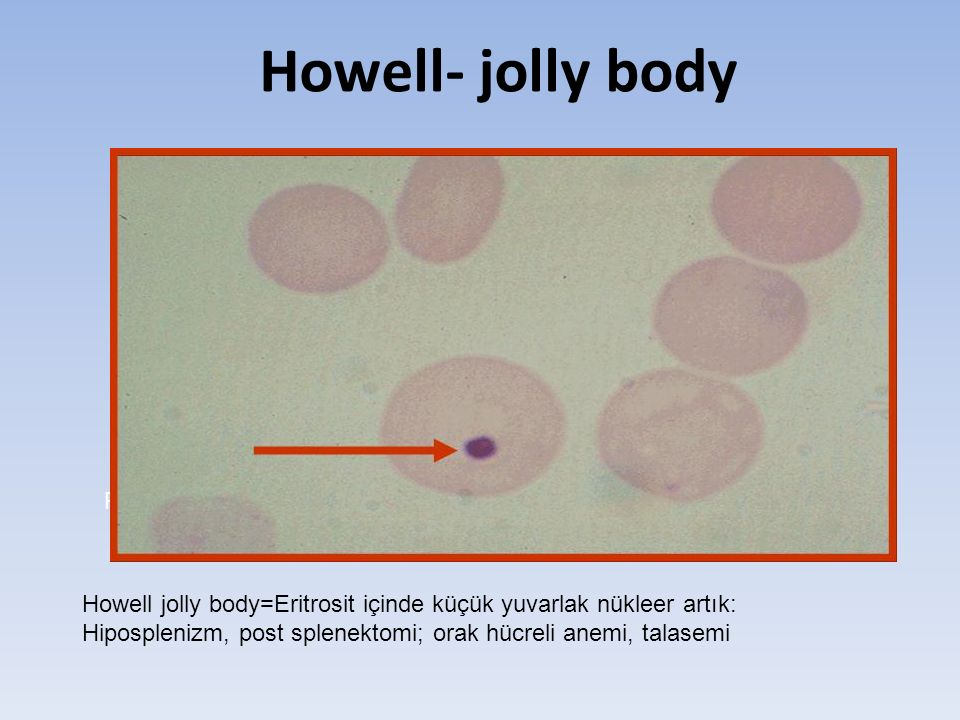 Howell- jolly body Post-splenektomili bir hasta,