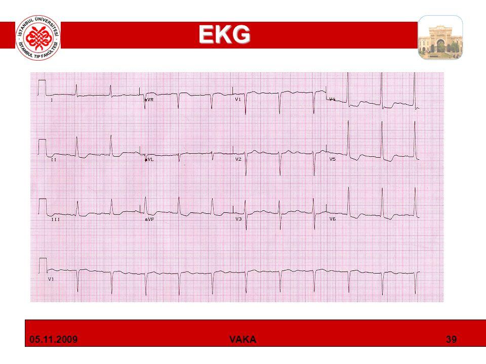 EKG 05.11.2009 VAKA
