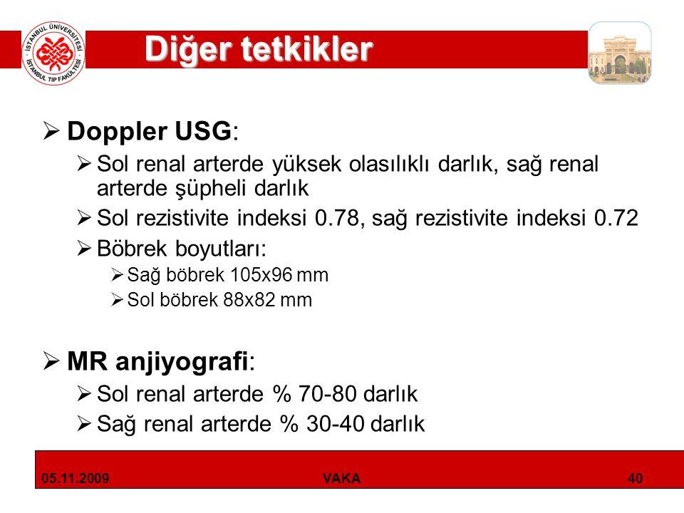 Diğer tetkikler Doppler USG: MR anjiyografi: