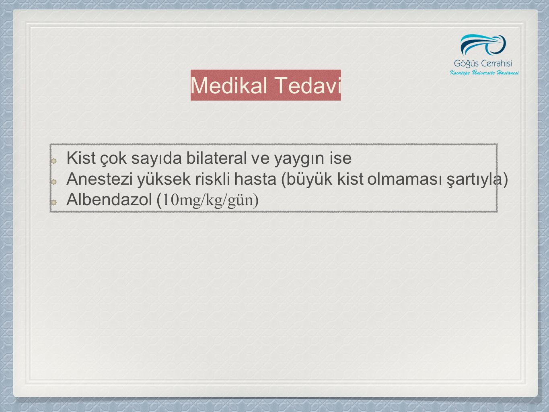 Medikal Tedavi Kist çok sayıda bilateral ve yaygın ise