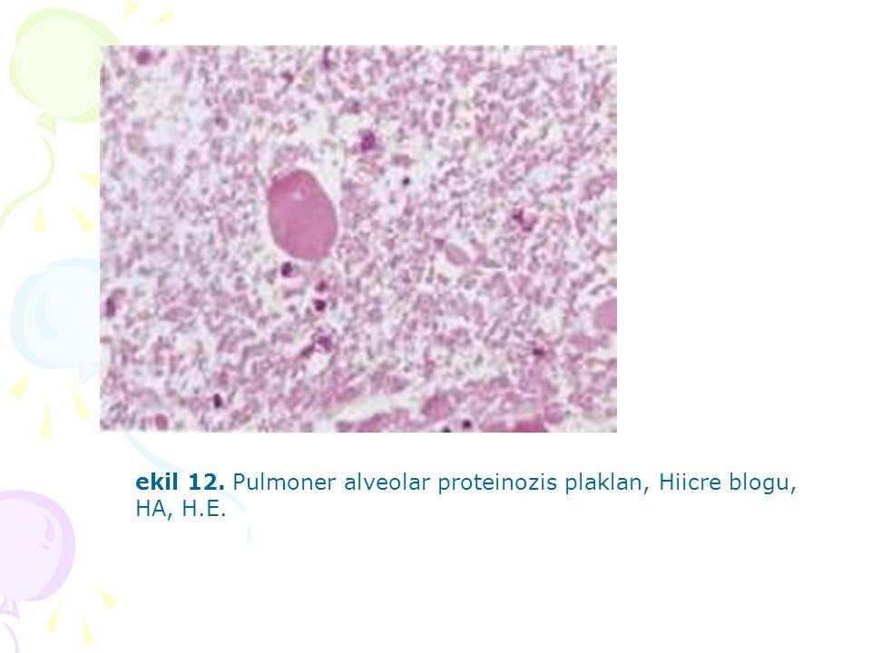 ekil 12. Pulmoner alveolar proteinozis plaklan, Hiicre blogu, HA, H.E.