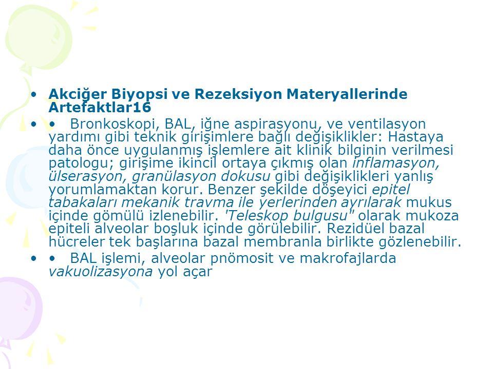 Akciğer Biyopsi ve Rezeksiyon Materyallerinde Artefaktlar16