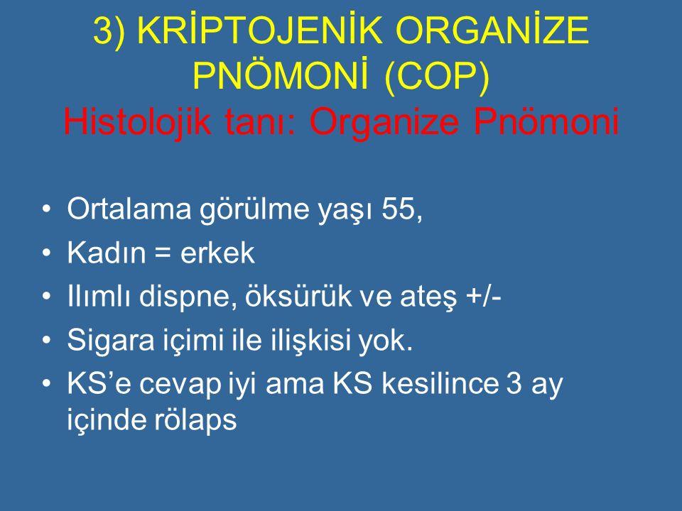 3) KRİPTOJENİK ORGANİZE PNÖMONİ (COP) Histolojik tanı: Organize Pnömoni