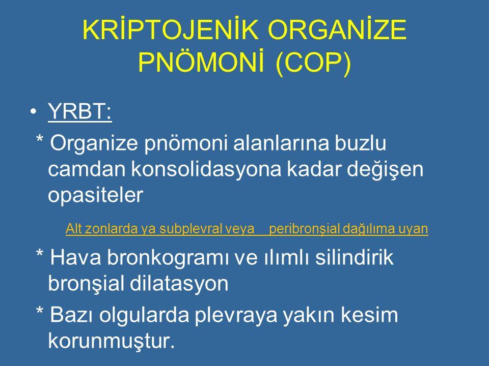 KRİPTOJENİK ORGANİZE PNÖMONİ (COP)