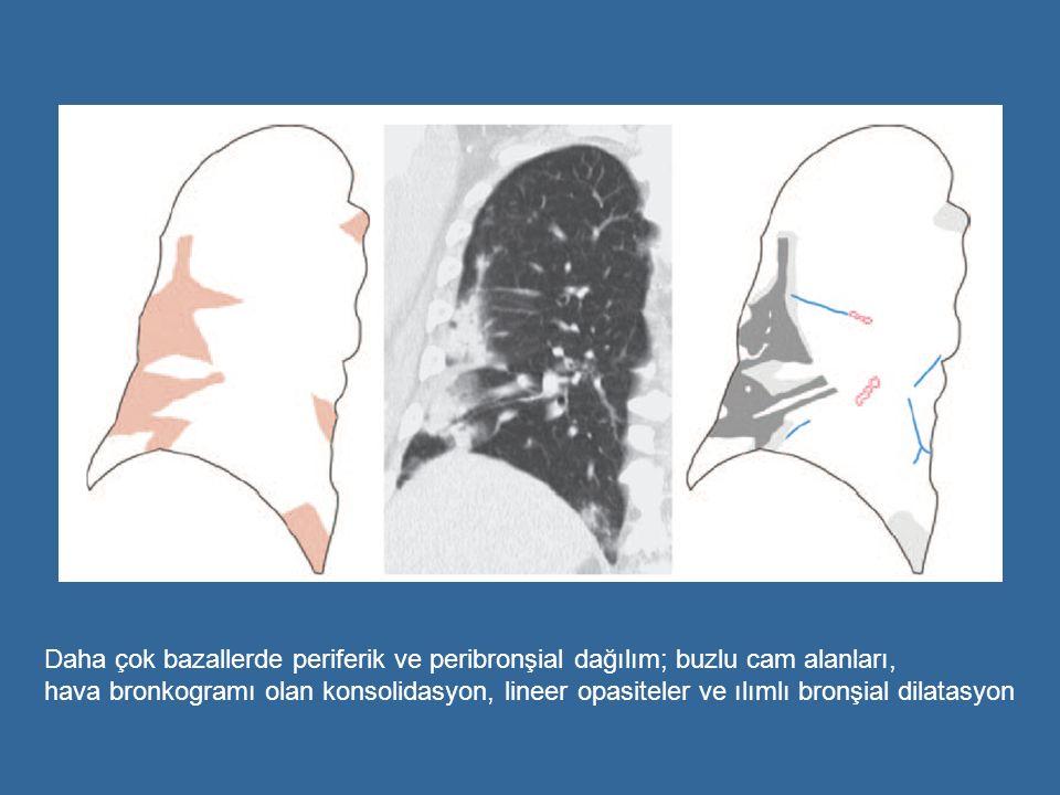 Daha çok bazallerde periferik ve peribronşial dağılım; buzlu cam alanları,