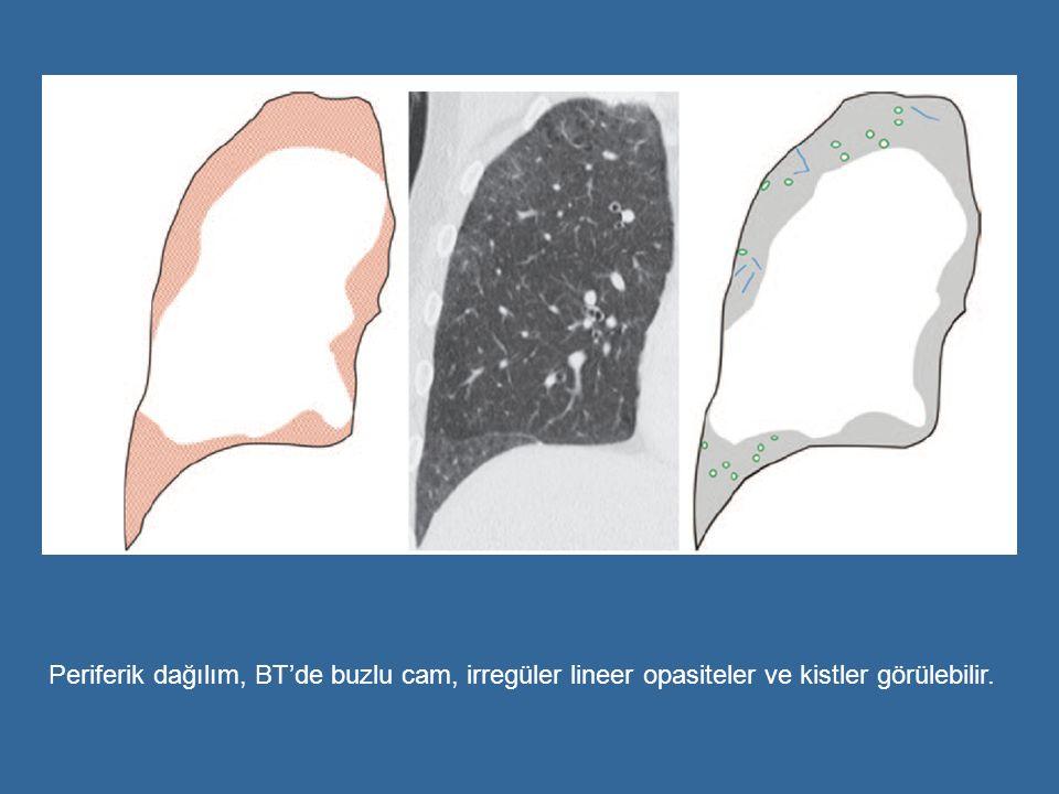 Periferik dağılım, BT'de buzlu cam, irregüler lineer opasiteler ve kistler görülebilir.