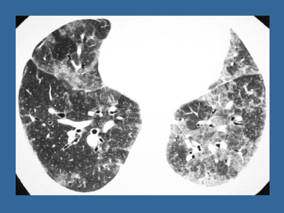 DIP: High-resolution CT (HRCT) shows patchy bilateral areas of ground-glass opacity and mild reticulation.