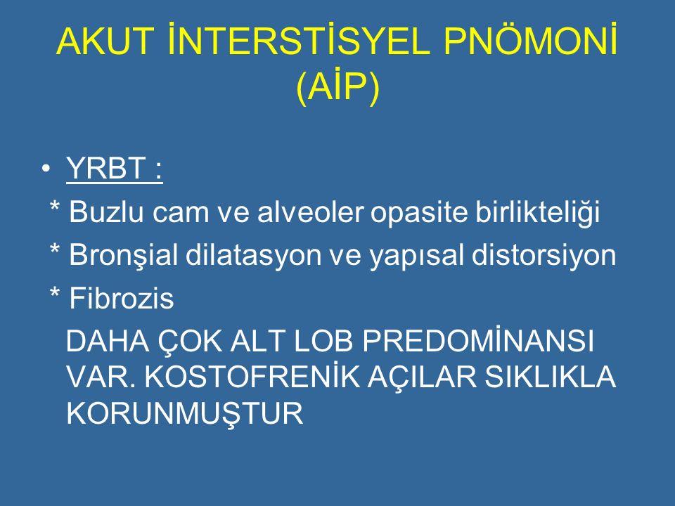 AKUT İNTERSTİSYEL PNÖMONİ (AİP)