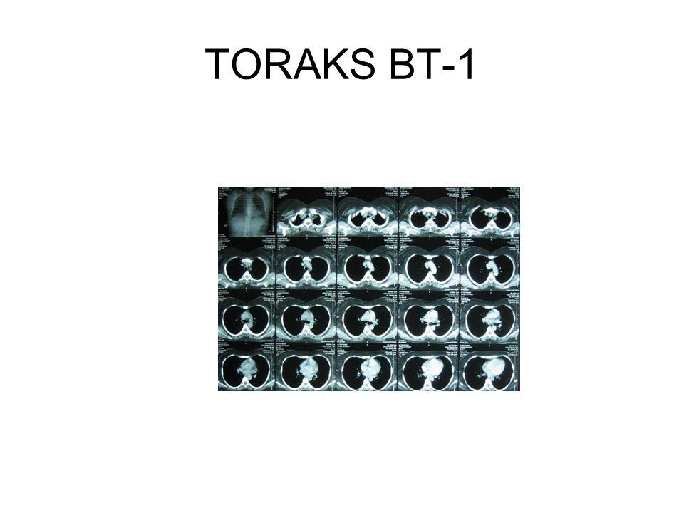 TORAKS BT-1