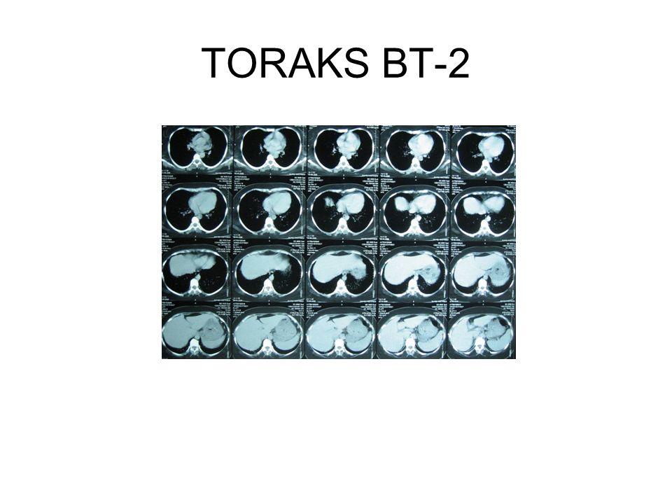 TORAKS BT-2