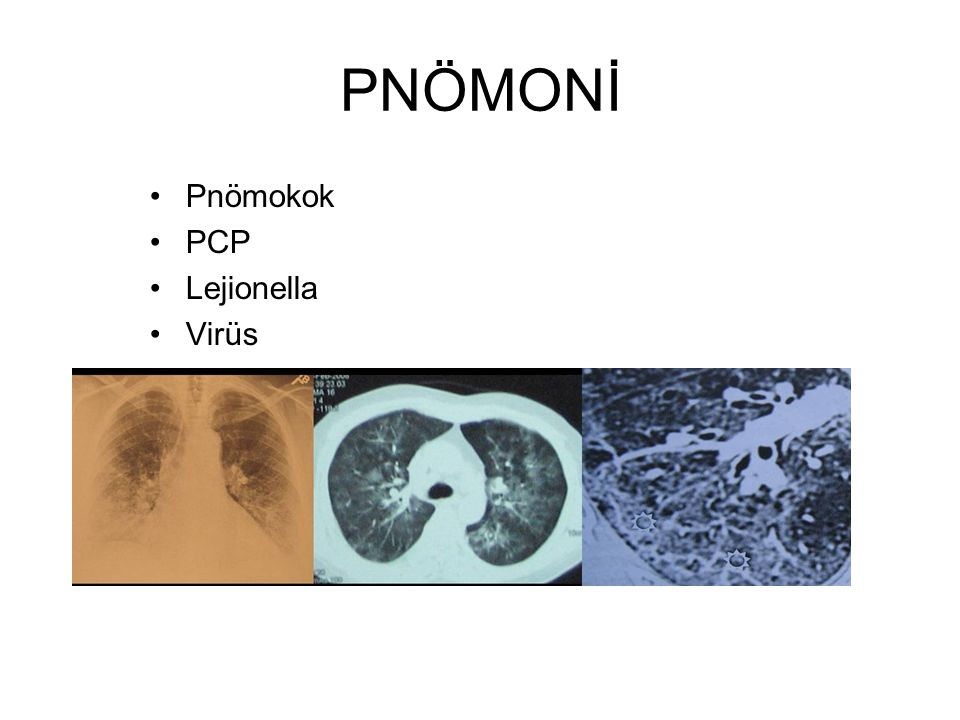 PNÖMONİ Pnömokok PCP Lejionella Virüs
