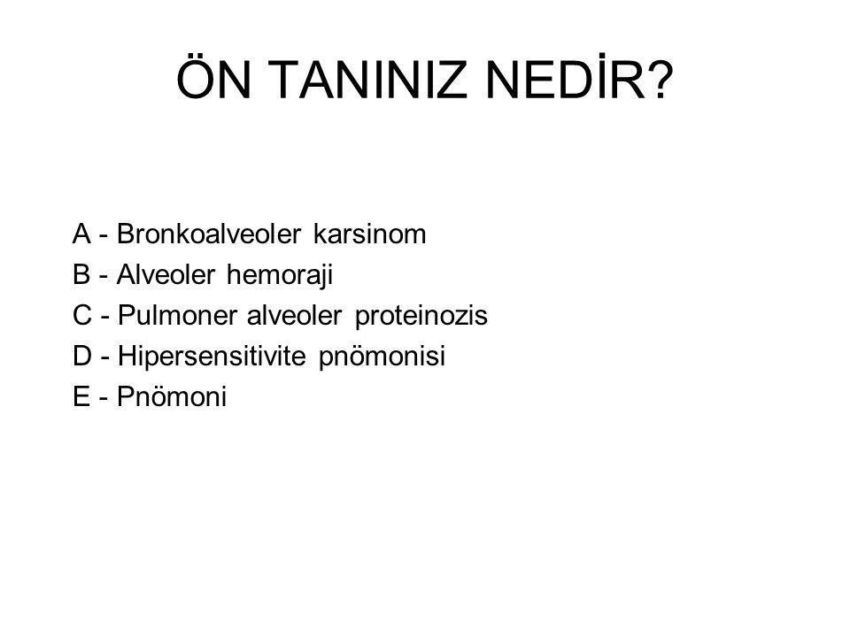 ÖN TANINIZ NEDİR A - Bronkoalveoler karsinom B - Alveoler hemoraji