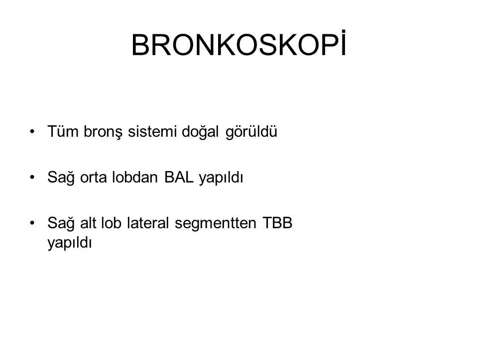 BRONKOSKOPİ Tüm bronş sistemi doğal görüldü