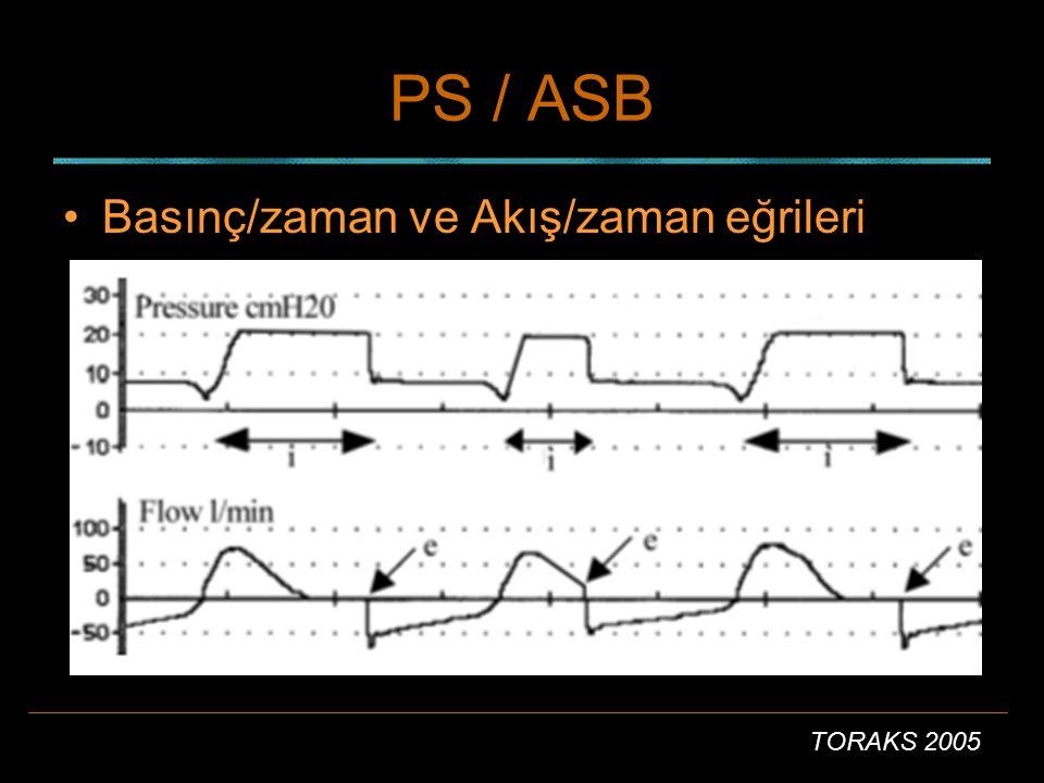 PS / ASB Basınç/zaman ve Akış/zaman eğrileri