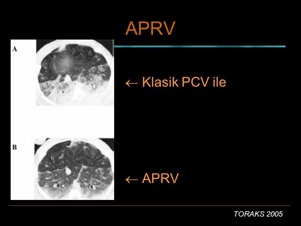 APRV  Klasik PCV ile  APRV