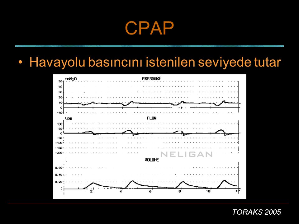 CPAP Havayolu basıncını istenilen seviyede tutar