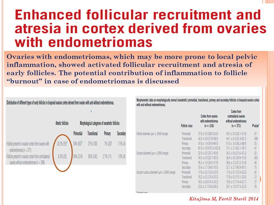 Ovaries with endometriomas, which may be more prone to local pelvic inflammation, showed activated follicular recruitment and atresia of early follicles. The potential contribution of inflammation to follicle ''burnout'' in case of endometriomas is discussed