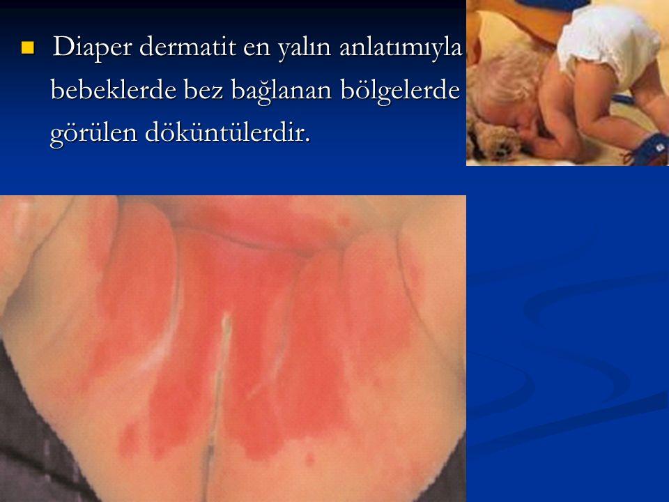 Diaper dermatit en yalın anlatımıyla