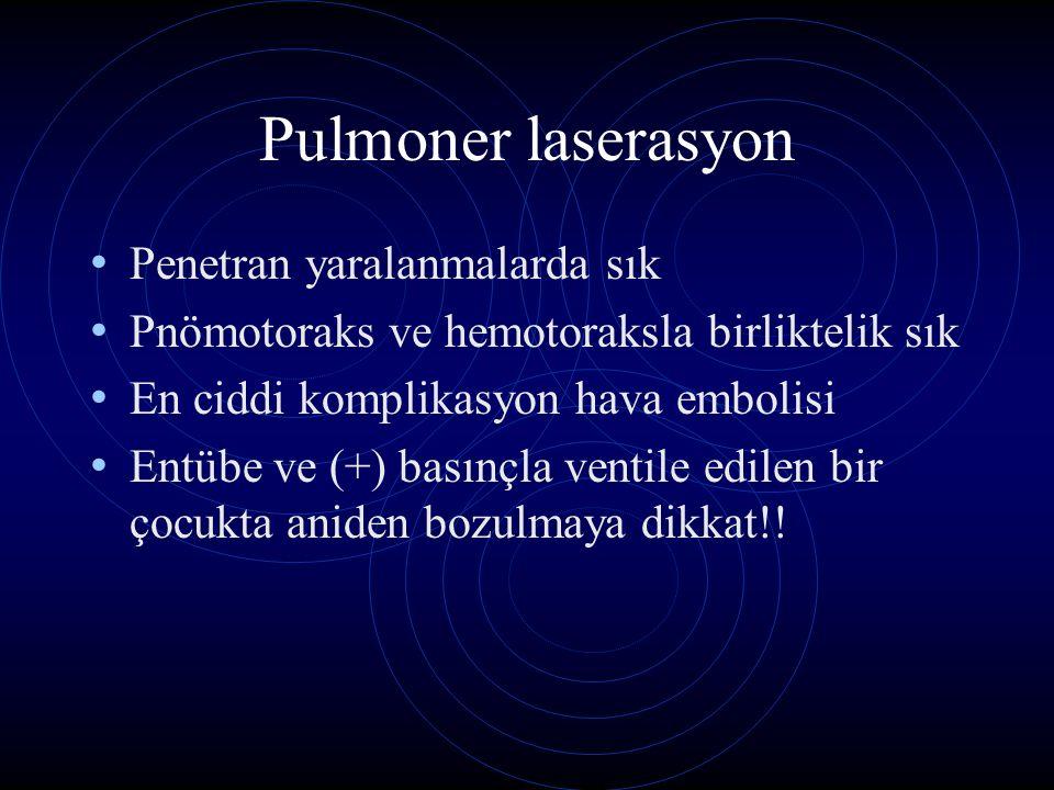 Pulmoner laserasyon Penetran yaralanmalarda sık