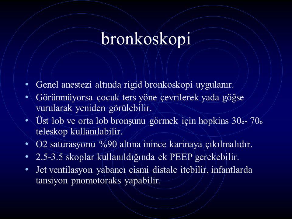 bronkoskopi Genel anestezi altında rigid bronkoskopi uygulanır.