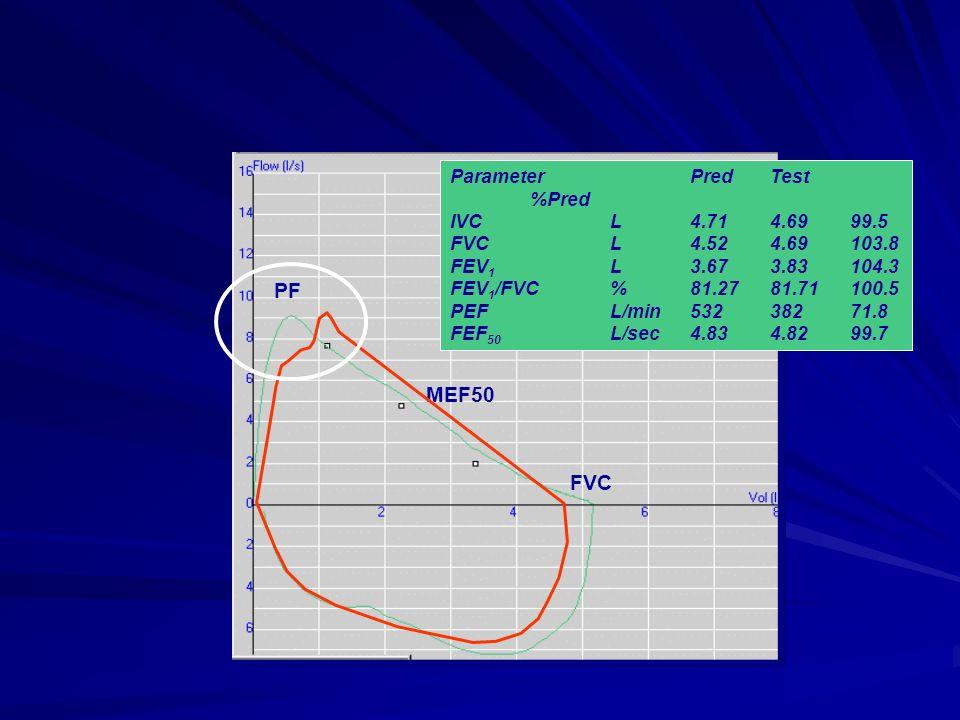 PF MEF50 FVC Parameter Pred Test %Pred IVC L 4.71 4.69 99.5