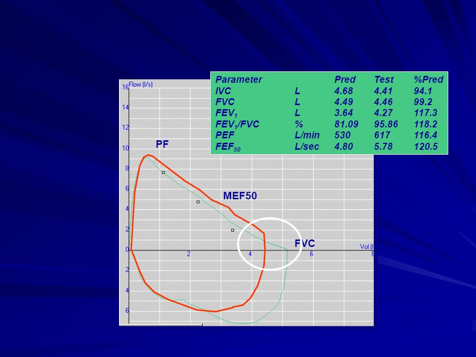 PF MEF50 FVC Parameter Pred Test %Pred IVC L 4.68 4.41 94.1