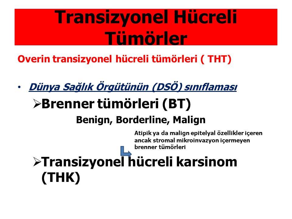 Transizyonel Hücreli Tümörler