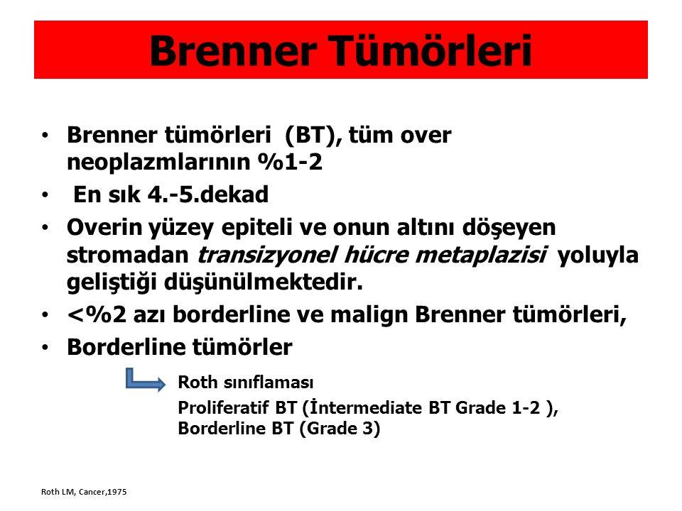 Brenner Tümörleri Brenner tümörleri (BT), tüm over neoplazmlarının %1-2. En sık 4.-5.dekad.