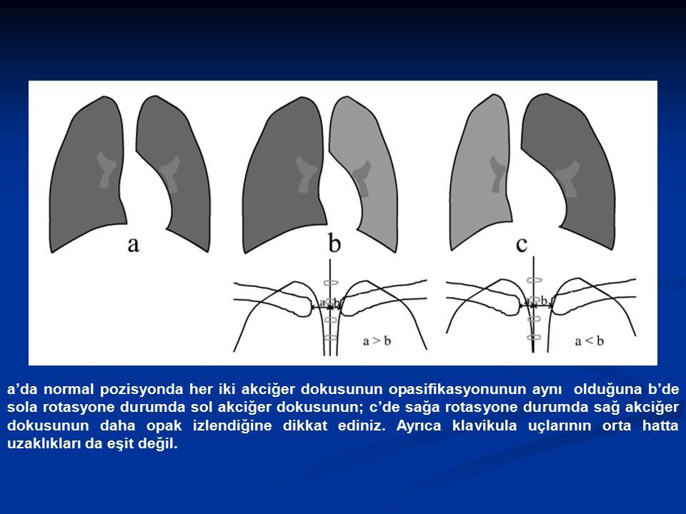 a'da normal pozisyonda her iki akciğer dokusunun opasifikasyonunun aynı olduğuna b'de sola rotasyone durumda sol akciğer dokusunun; c'de sağa rotasyone durumda sağ akciğer dokusunun daha opak izlendiğine dikkat ediniz.