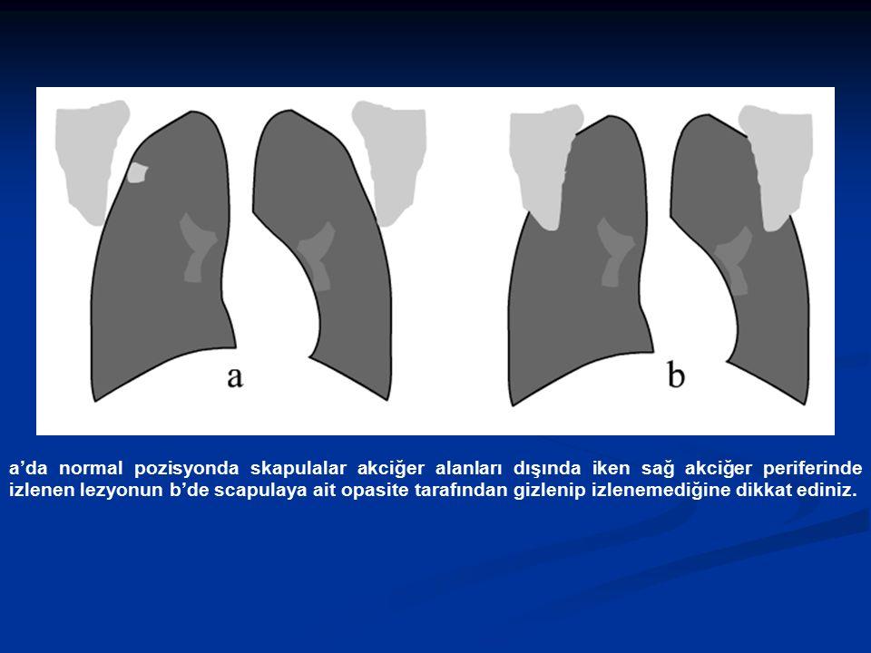 a'da normal pozisyonda skapulalar akciğer alanları dışında iken sağ akciğer periferinde izlenen lezyonun b'de scapulaya ait opasite tarafından gizlenip izlenemediğine dikkat ediniz.