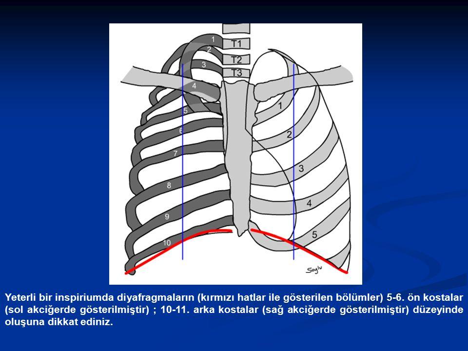 Yeterli bir inspiriumda diyafragmaların (kırmızı hatlar ile gösterilen bölümler) 5-6.