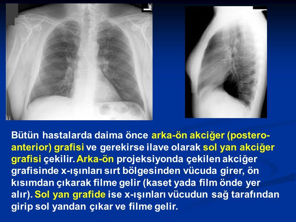 Bütün hastalarda daima önce arka-ön akciğer (postero-anterior) grafisi ve gerekirse ilave olarak sol yan akciğer grafisi çekilir.