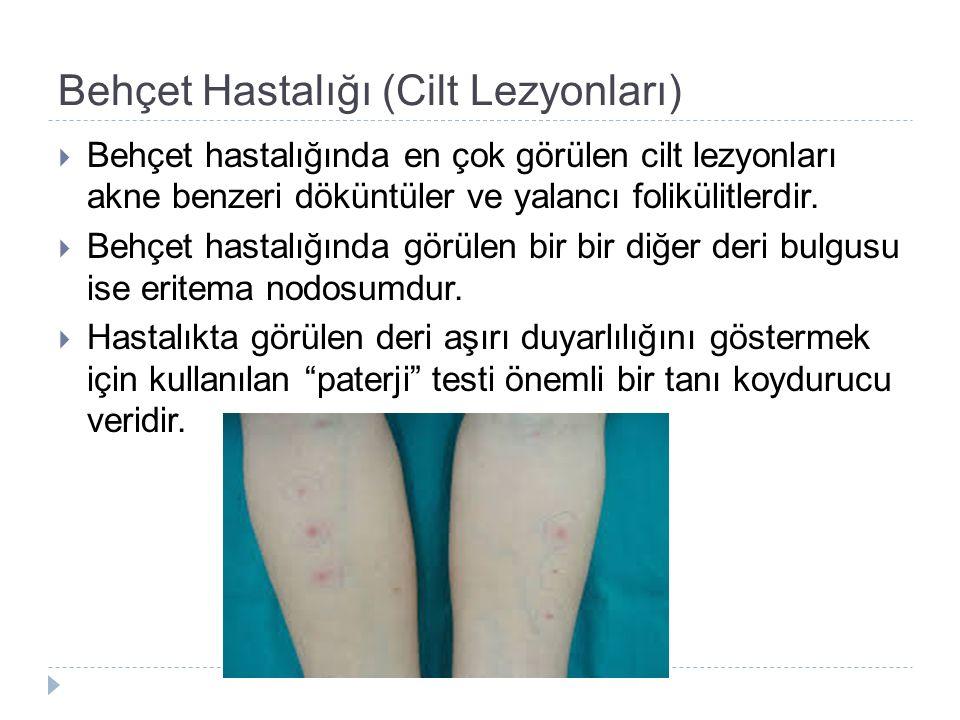 Behçet Hastalığı (Cilt Lezyonları)