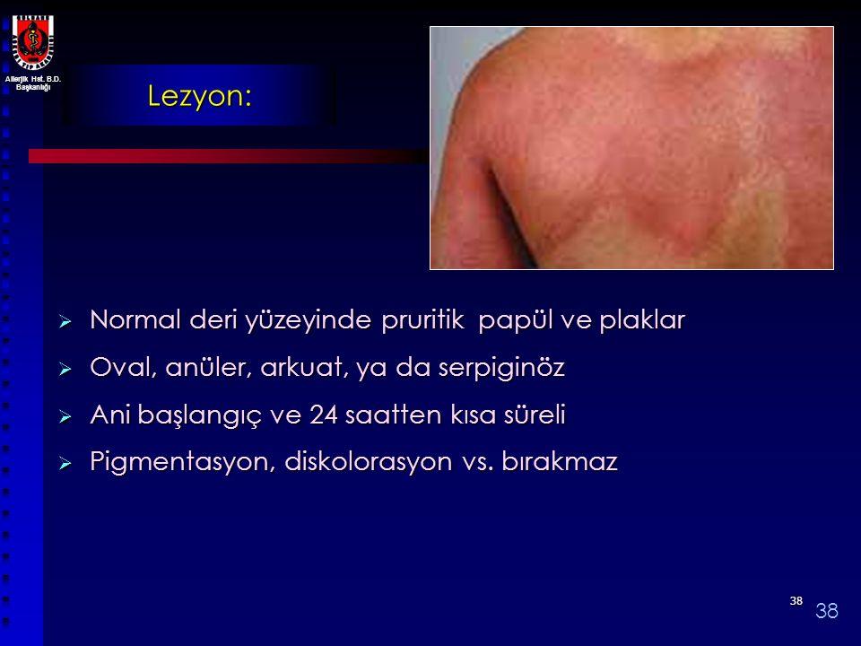 Lezyon: Normal deri yüzeyinde pruritik papül ve plaklar