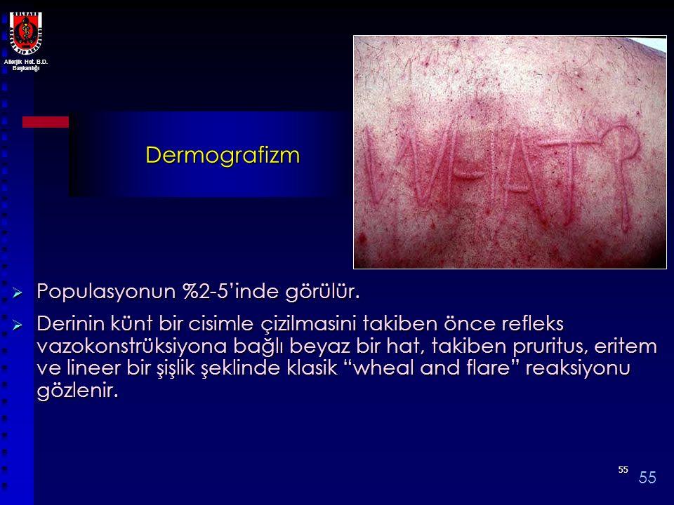 Dermografizm Populasyonun %2-5'inde görülür.